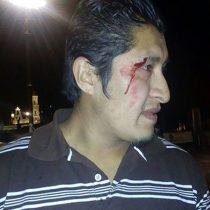Policía de alcalde de Toluca, Fernando Zamora, lesiona de gravedad a comerciante de Toluca;
