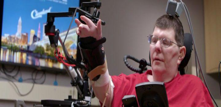 Tetrapléjico mueve el brazo con su pensamiento mediante un implante