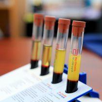 La sobrecarga de colesterol en hígado condiciona tumores más agresivos