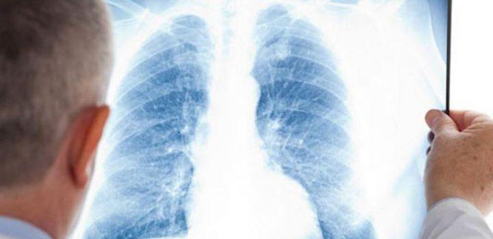 Fibrosis Pulmonar Idiopática, una rara enfermedad que puede robarte el aliento