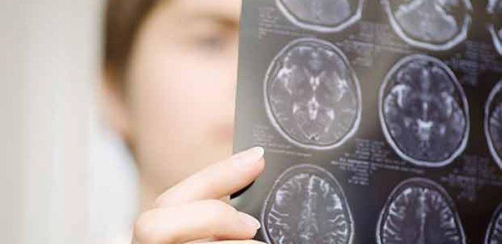 Descubren una forma nunca vista de conexión entre neuronas