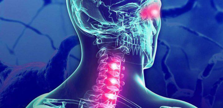 Existe desigualdad en diagnóstico y tratamiento de Esclerosis Múltiple en México y AL