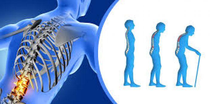 Solamente el 20% de pacientes con Osteoporosis conoce que padecen la enfermedad