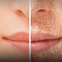 IMSS alerta sobre daños en la piel por exposición al sol
