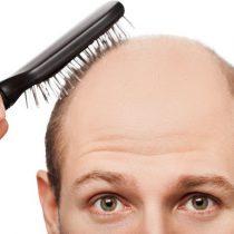¿Cómo saber si soy propenso a la Alopecia?