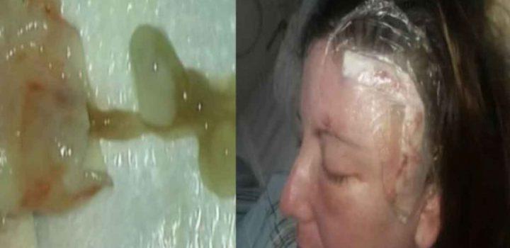 Mujer vive un año con enorme gusano en el cerebro