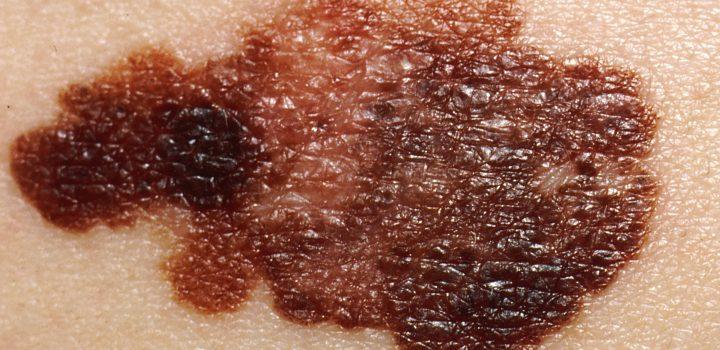 ¿Cuál es la incidencia de melanoma en México y el mundo?