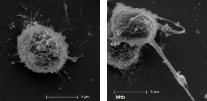 Estudian el papel de los glóbulos blancos en las alergias y los procesos infecciosos