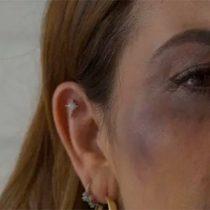 Fui víctima de la violencia: Fabiola Campomanes