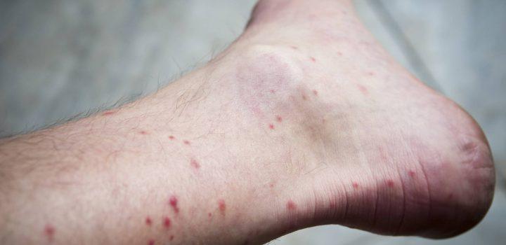 ¿Por qué los mosquitos se ceban con nuestros tobillos?