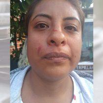 Morenistas golpean a antorchista que repartía agua entre vecinos de Tláhuac